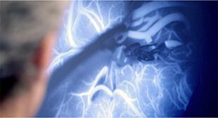 Das Bild zeigt eine Szene aus der Neurochirurgie. Der amerikanische Neurochirurg Prof. Michael Lawton beobachtet einen Eingriff am Gehirn an einem Bildschirm. Es ist zu sehen wie Medizintechnik hilft komplizierte Operationen durchzuführen.